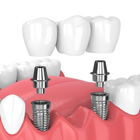 implantes dentales múltiples
